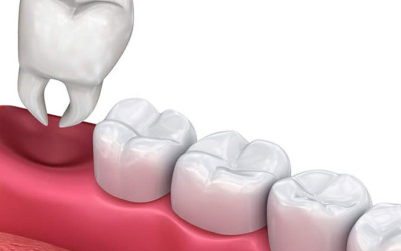 wisdom tooth extractions near you