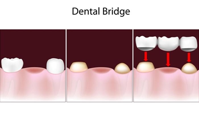 dental bridges in indian land