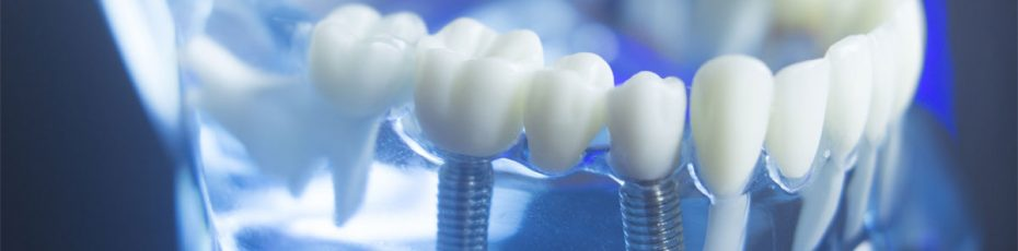top 5 things one must know about dental implants
